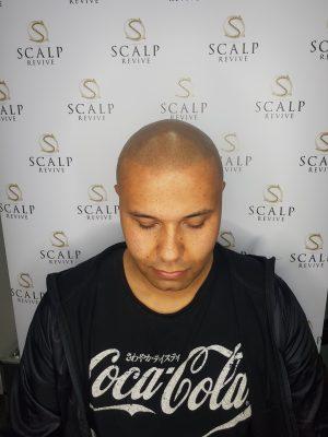 Leeds Hairloss Clinic Scalp micropigmentation in Leeds. UK