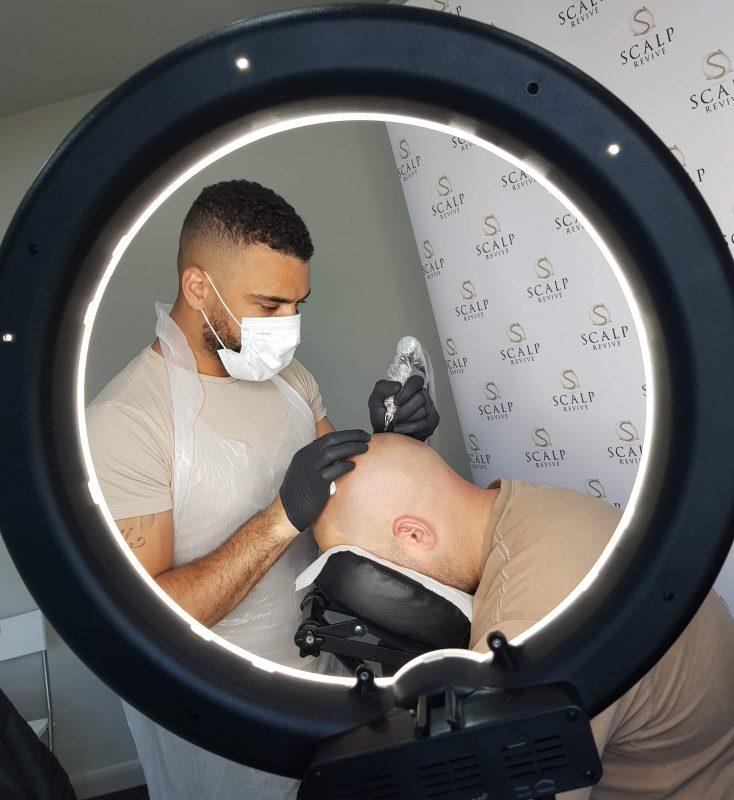 Shane Anderson Scalp micropigmentation in Leeds