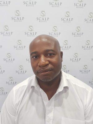 scalp micropigmentation in Leeds