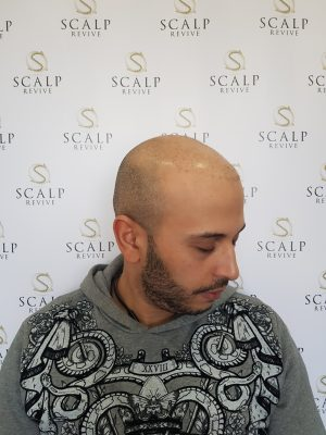 Hair Transplant, scalp micro pigmentation Leeds.