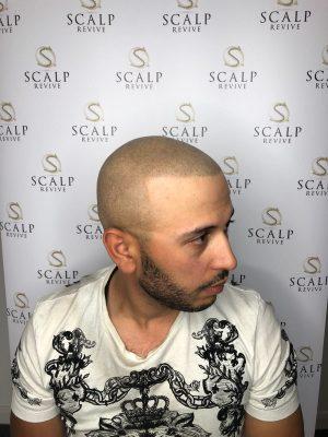 Scalp Micro Leeds