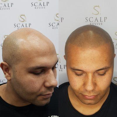 scalp micropigmenation leeds