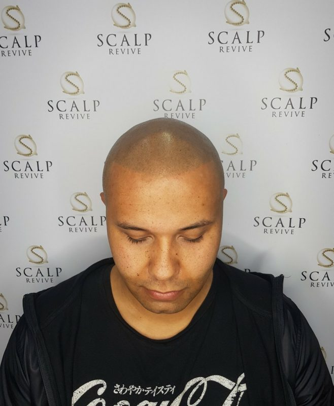 Hair Tattoo Leeds. Scalp micropigmentation in Leeds