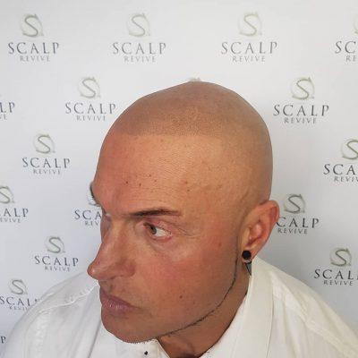Hair loss Treatment leeds. scalp micropigmentation uk