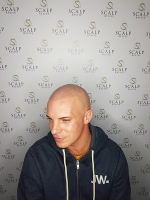 Hair loss treatments Leeds. Uk. scalp micropigmentation in Leeds
