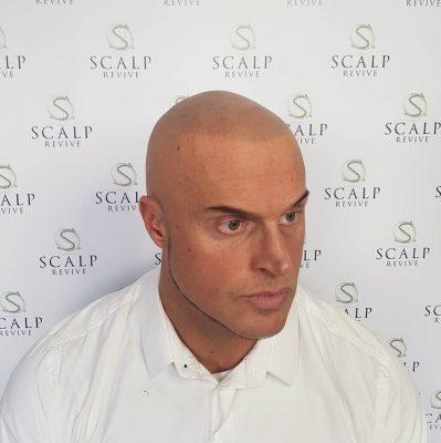 Scalp Revive Leeds. thinning hair treatments leeds