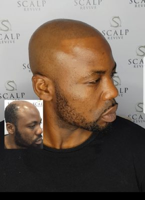 smp leeds hair tattoo. hair loss treatments leeds. skin fade
