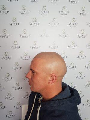 Hair SMP. Leeds scalp micro pigmentation