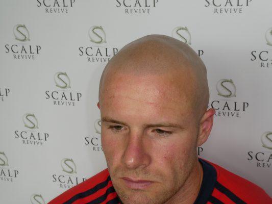 Scalp Micropigmentation Leeds. scalp micropigmentation UK. Hair tattoo in Leeds. Micropigmentation uk.