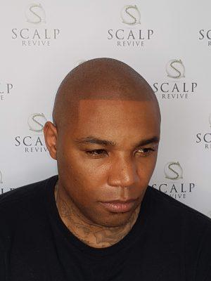 Hair Tattoo Leeds. Scalp Micropigmentation Leeds. Scalp revive