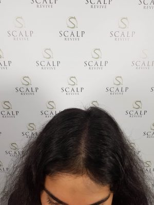 Scalp Micropigmentation for women. SMP for women in Leeds