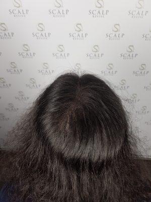 Scalp Micropigmentation for women. hair loss for women. Leeds UK