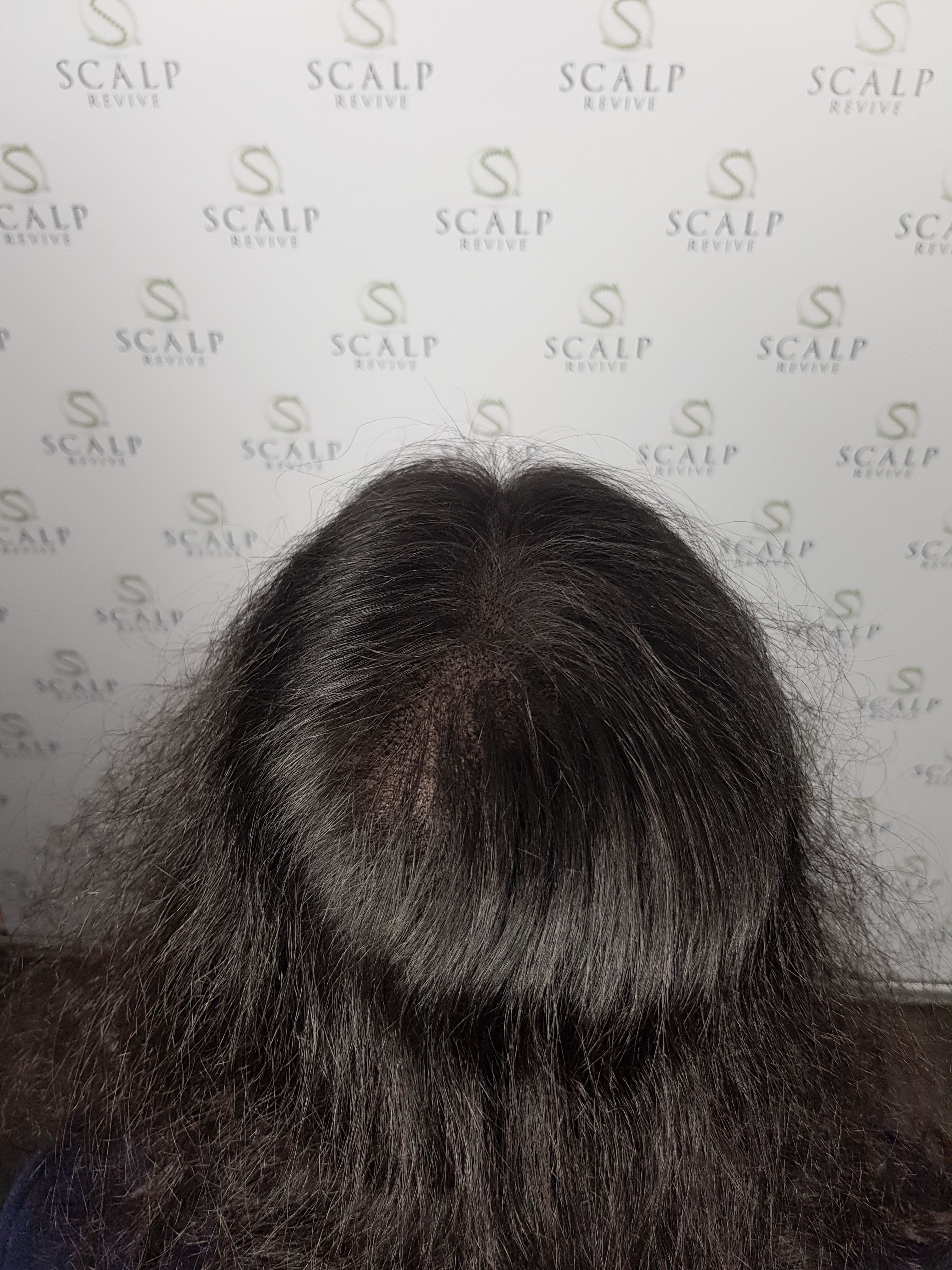 Scalp Micropigmentation for women. hair loss for women. Leeds UK