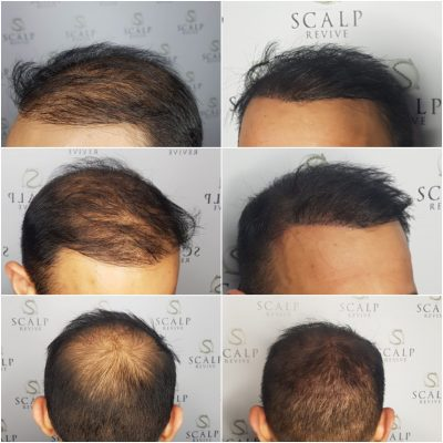 Hair Tattoo SMP densification. thinning hair in Leeds.