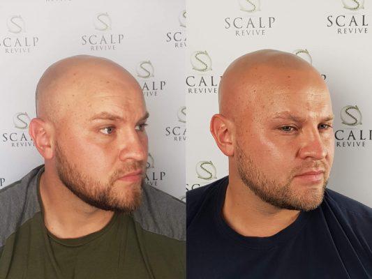 Scalp Micropigmentation Leeds. hair tattoo Leeds.