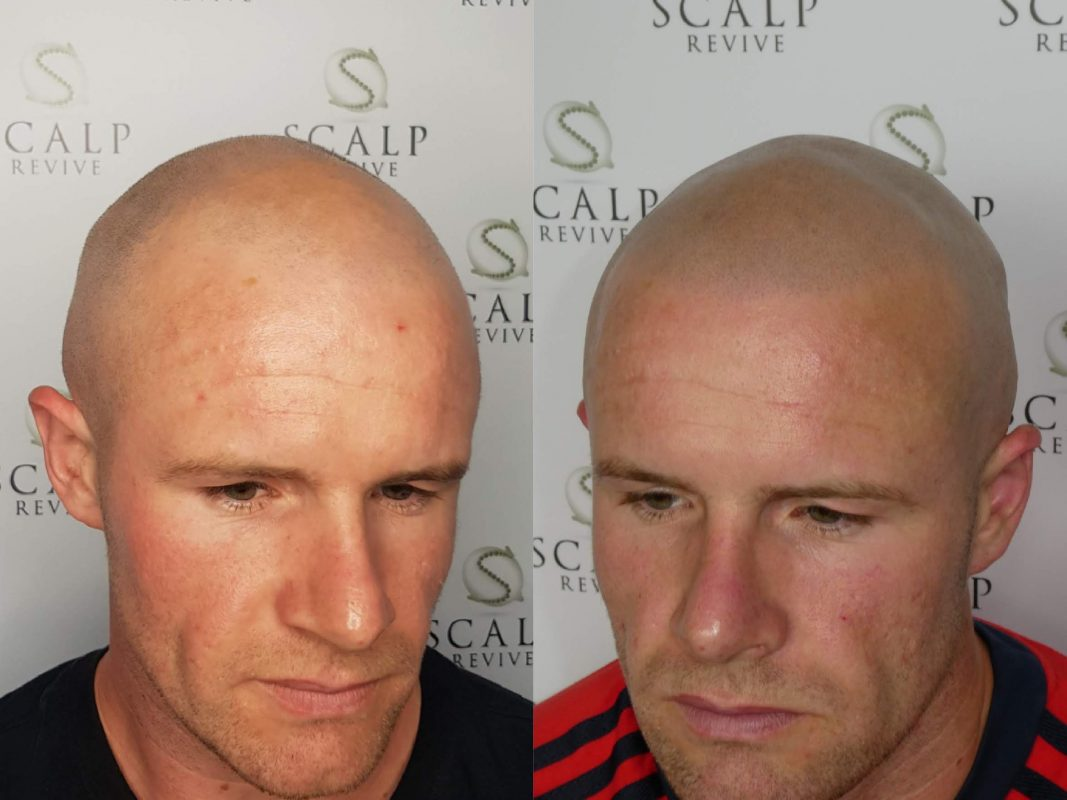 Scalp micropigmentation in Leeds. SMP Hair Tattoo in Leeds. best scalp micro clinic