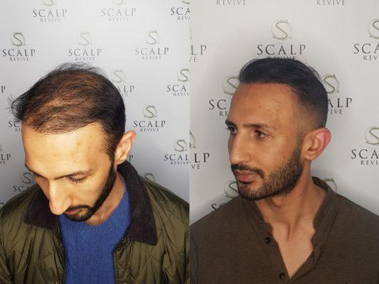 Leeds Scalp Micropigmentation, Hair transplant smp. Leeds. Scalp Uk
