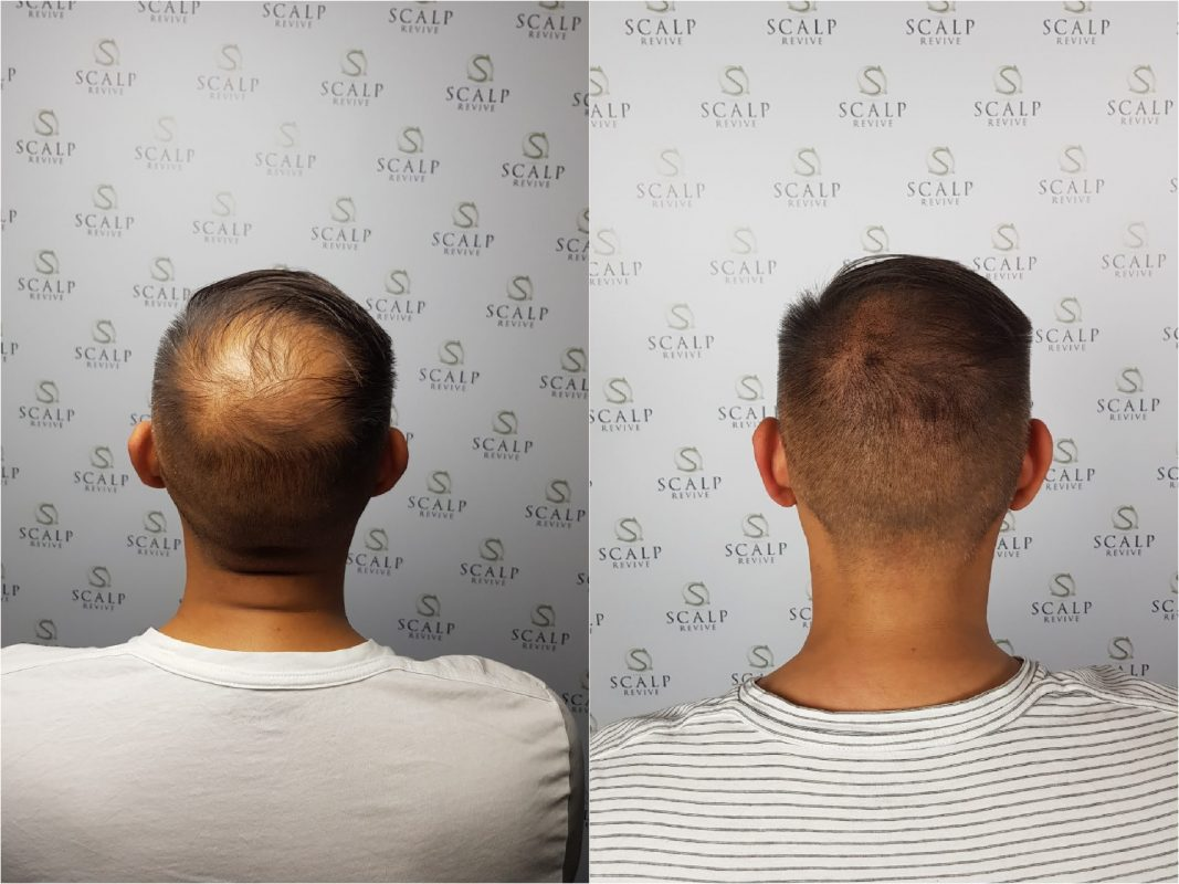 hair tattoo in Leeds. SMP Uk. Scalp Micro Pigmentation UK