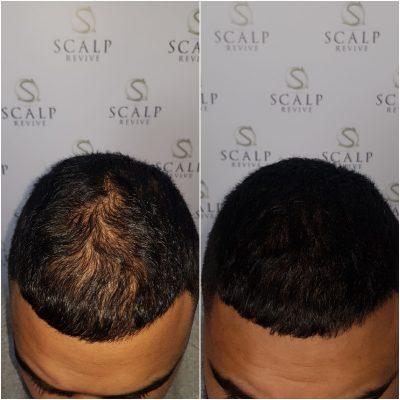 Long Hair SMP, Scalp micropigmentation UK. Hair tattoo Leeds. thinning hair Leeds