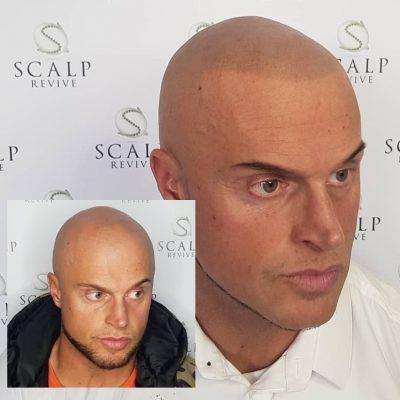 scalp leeds