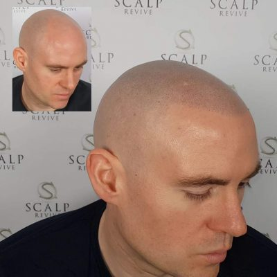scalp micropigmentation uk