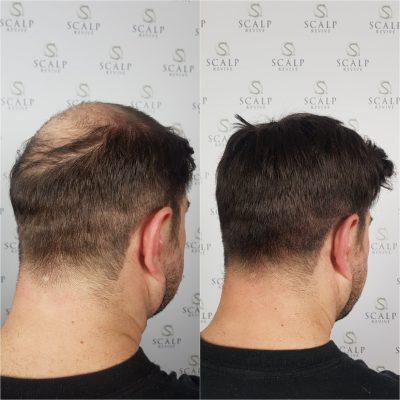 leeds scalp