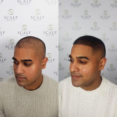 Hair Tattoo Leeds