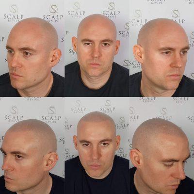 scalp tattoo leeds